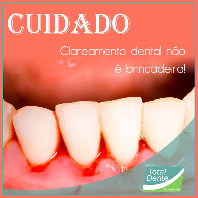 Clareamento Dental Sem Orientacao Pode Causar Danos Irreversiveis